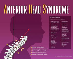 Anterior Head Syndrome